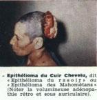 Epithélioma du cuir chevelu